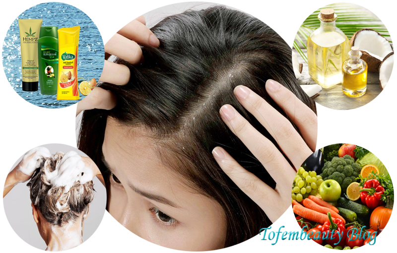 How to get rid of dandruff easily